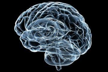 brain-x-ray4